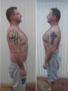 Before and After Side View Image of Paul Hayes